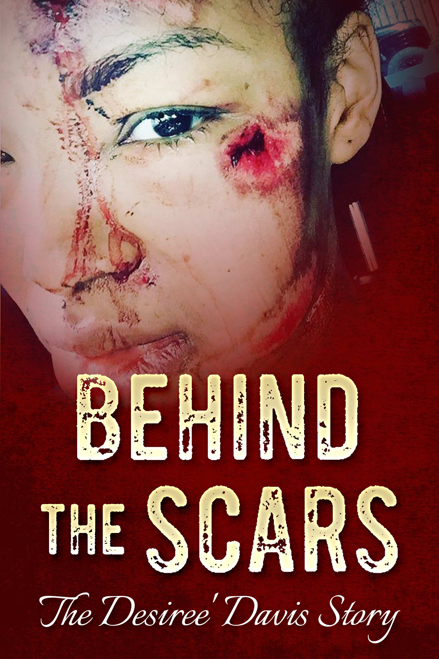 Behind-the-Scars